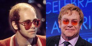 Elton-John-before-after