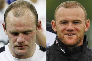 Hair transplant Wayne Rooney