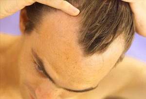 FUE hair transplant to treat alopecia