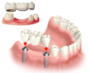 Fixed denture, also fixed partial denture