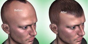 hair transplant healing time