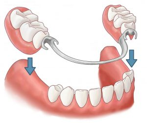 Partial removable denture: overdenture