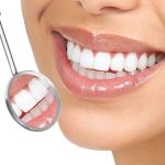 Healthy smile with crowns -