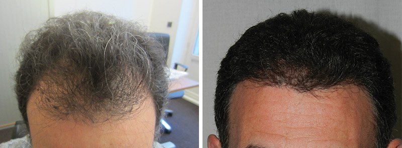 Hair transplant results: