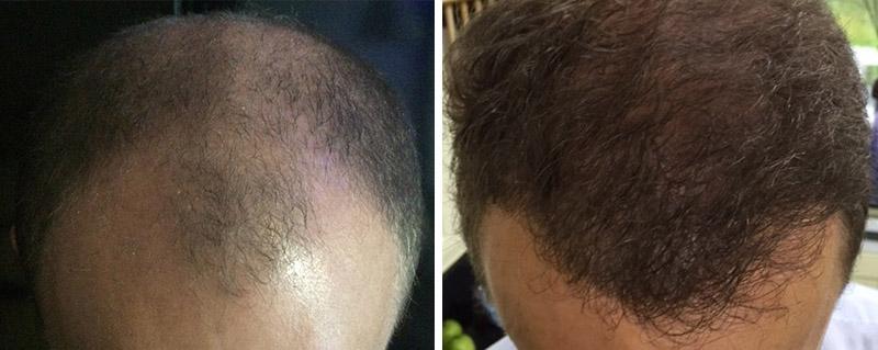 Hair transplant 4000 grafts