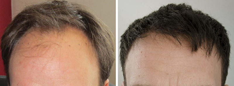 Hair transplants in 6 months