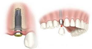 Dental implants cost abroad