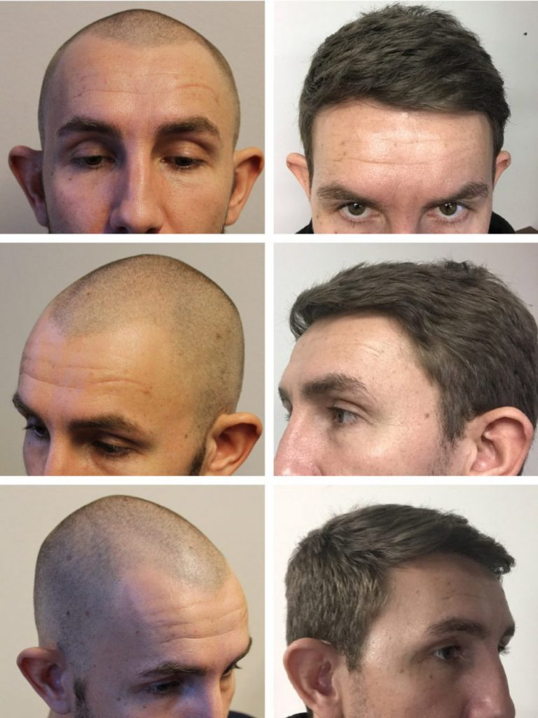 Hair transplant before after - from bald to full head of hair