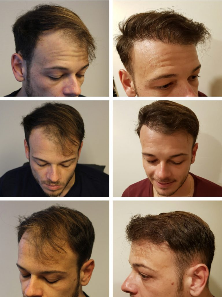 Hair transplants results - hair thickening