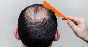 Alternaive hair growth treatments