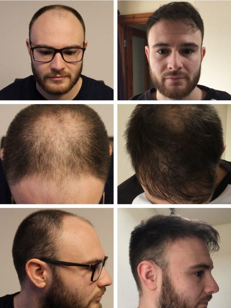 Hair transplant results timeline