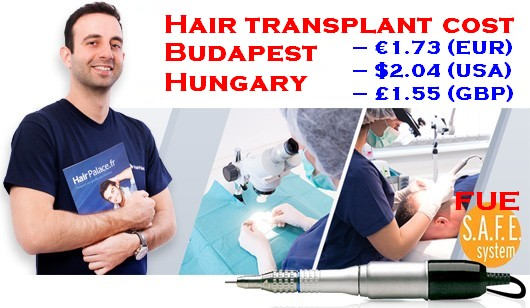 Hair transplant UK vs Hungary