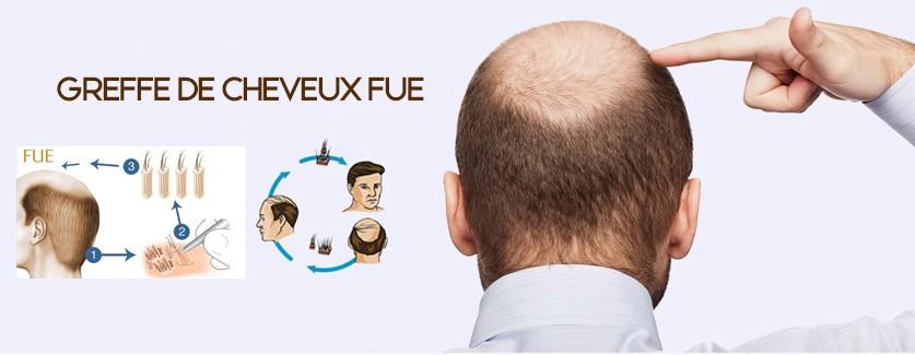 Greffe de cheveux Geneve, Suisse