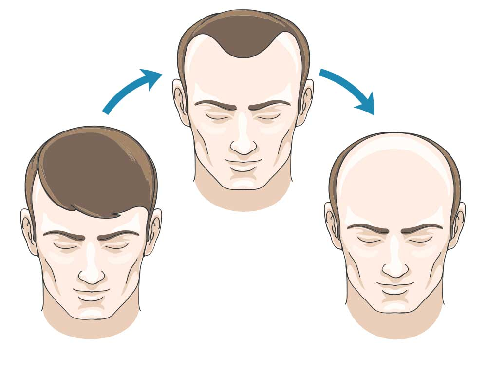 Mature or receding hairline?
