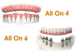 All on 4 dental implants / All on 6 dental implants