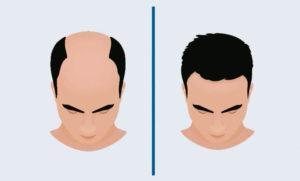 DHI hair transplant - Bristol, Glasgow, Bath