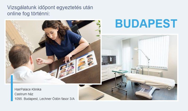 Hajbeültetés Budapest árak