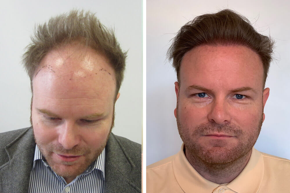 Hajnövesztés, hajdúsítás hajbeültetés módszerrel