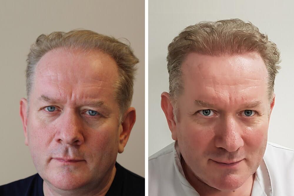 Hajnövesztő, hajmegtartó kezelések Budapesten
